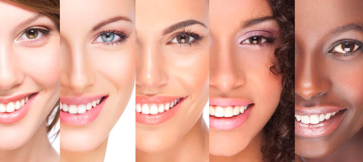 estetica denti