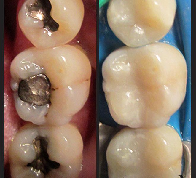otturazioni-denti